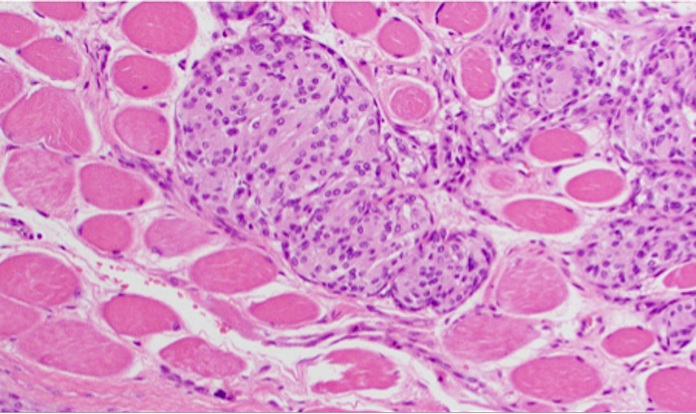 H&E-staining-of-WHO-grade-II-meningioma-at-high-power-magnification-demonstrating-skeletal-muscle-invasion