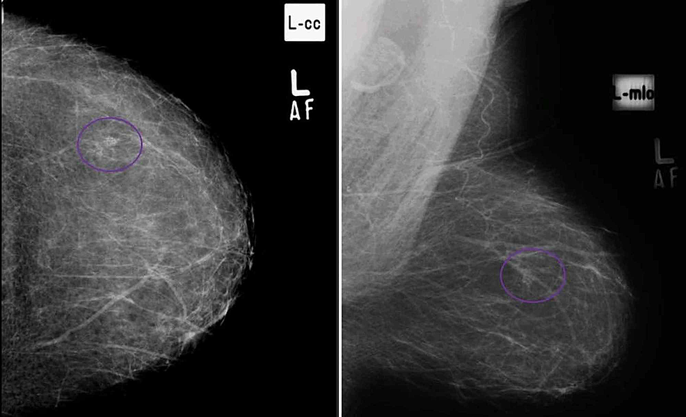 (A)-Craniocaudal-and-(B)-mediolateral-oblique-views-in-a-patient-with-cluster-of-pleomorphic-microcalcifications-in-upper-outer-quadrant-of-left-breast,-proven-to-be-breast-carcinoma-on-histopathology.-(True-Positive)