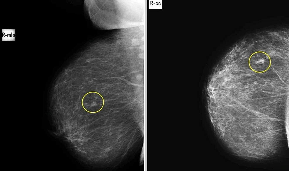Mediolateral-(A)-and-craniocaudal-(B)-views-in-a-patient-with-soft-tissue-nodule-with-benign-specks-of-microcalcifications-in-upper-outer-quadrant-of-right-breast,-proven-to-be-breast-carcinoma-on-histopathology.-(False-Negative)