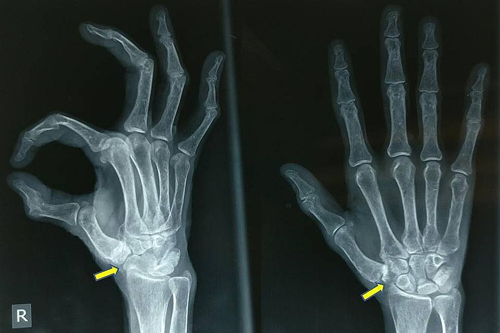 Pre-operative-radiograph-(antero-posterior-and-oblique-views)