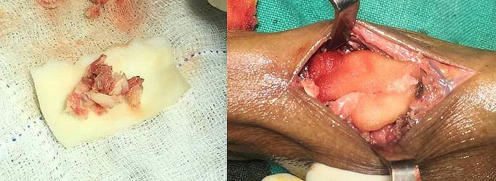 Operative-technique