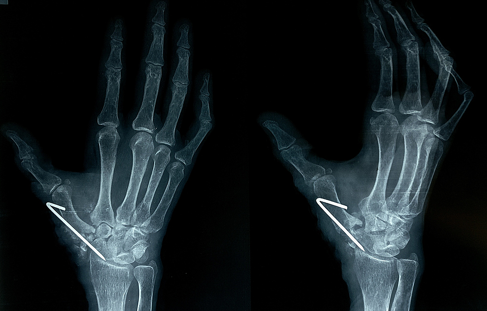 Postoperative-radiographs-(antero-posterior-and-oblique-views)