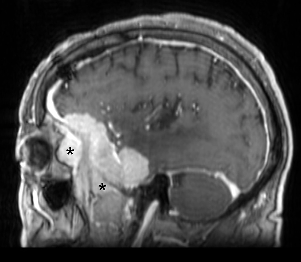 Preoperative-sagittal-MRI-demonstrating-tumor-involvement-of-the-lateral-orbit-and-temporalis-muscle