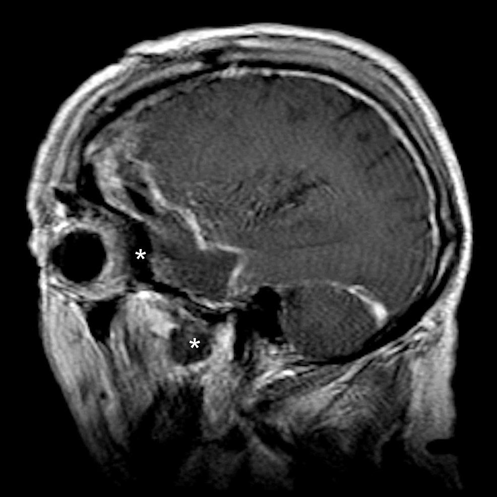 Postoperative-sagittal-MRI-demonstrating-resection-of-the-intraorbital-and-intramuscular-tumor-component