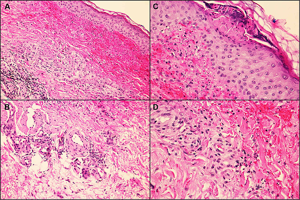 Histopathology-of-a-lesion-from-the-left-lower-extremity