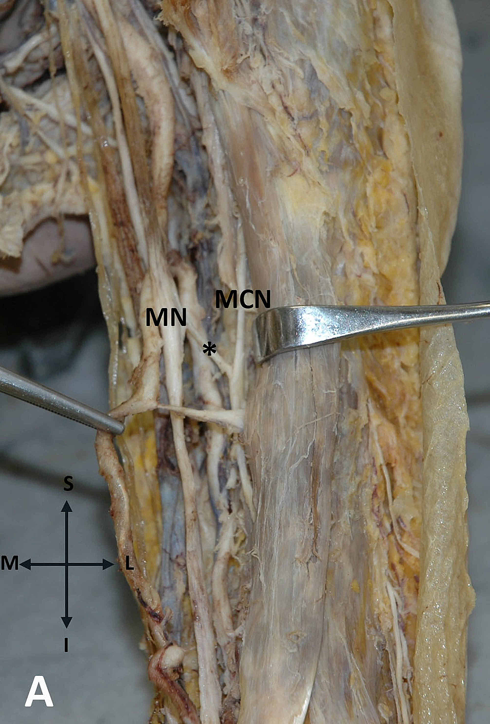 Anastomosis-between-the-MN-and-MCN-on-the-left-upper-arm