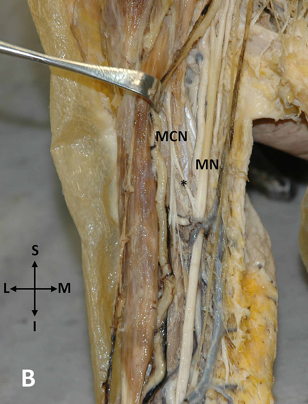 An-anastomosis-between-the-MCN-and-MN-on-the-right-upper-arm