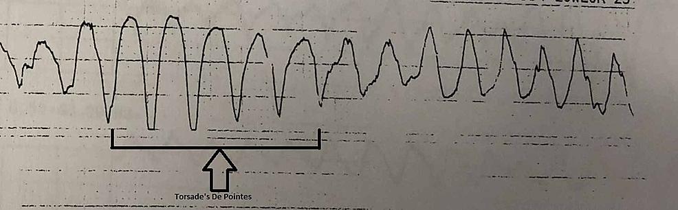 ECG-strip-showing-torsades-de-pointes.