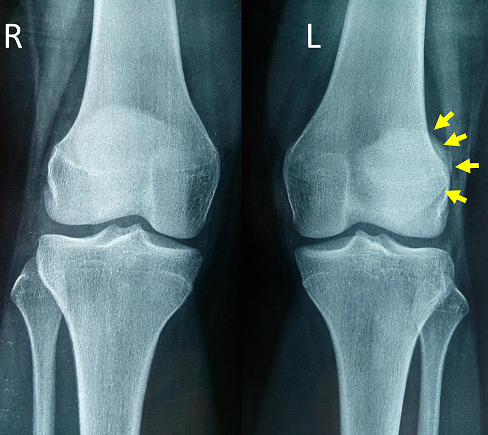 Anteroposterior-X-ray-of-both-knees-in-the-standing-position-on-patient-admission