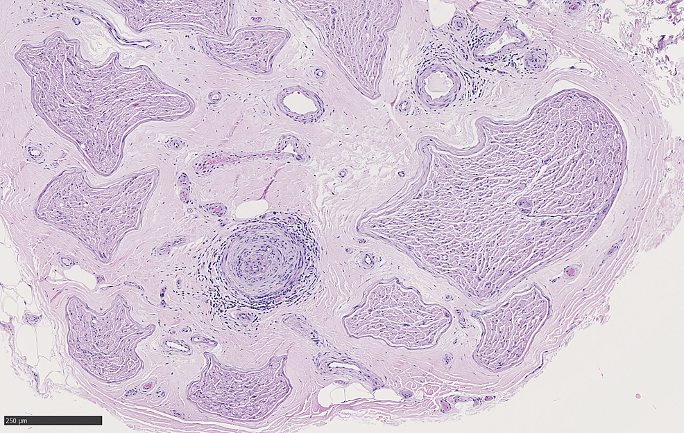 Cross-section-of-sural-nerve-with-nerve-bundles-sampled-healthy-on-HE_10x_05