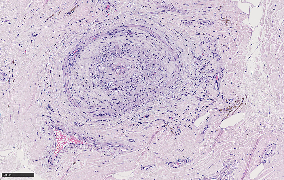 Cross-section-of-sural-nerve-with-fibrinoid-necrosis-and-hemosiderin-deposition-best-visible-on-HE_20x_02