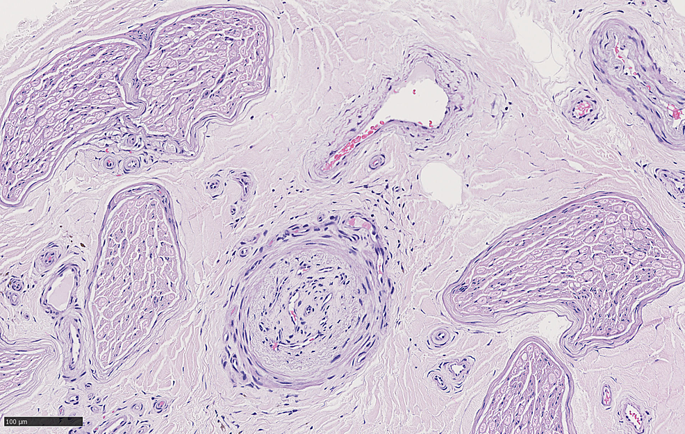 Cross-section-of-sural-nerve-with-neovascularization-best-seen-on-HE_20x_03