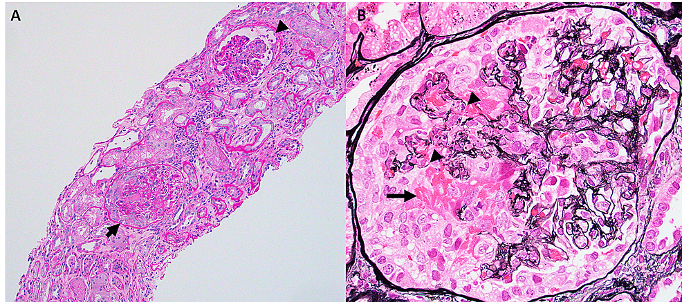 Necrotizing-and-crescentic-glomerulonephritis-(arrow).-(A)-Periodic-acid-Schiff-stained-biopsy-section-demonstrating-glomeruli-with-a-necrotizing-lesion-(arrow-head)-and-a-necrotizing-cellular-crescent.-There-is-also-increased-interstitial-inflammation-and-patchy-acute-tubular-injury.-(B)-High-magnification-view-of-Jones-methionine-silver-stained-biopsy-section-demonstrating-a-necrotizing-cellular-crescent-with-disruption-of-underlying-glomerular-basement-membranes-(arrow-heads)-and-extravasation-of-cells-and-fibrin-(arrow)-into-the-urinary-space.