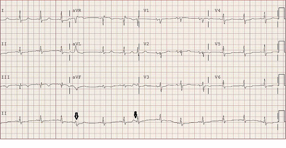 Electrocardiogram---sinus-rhythm-at-80-beats-per-minute-and-premature-complexes-shown-in-black-arrows.