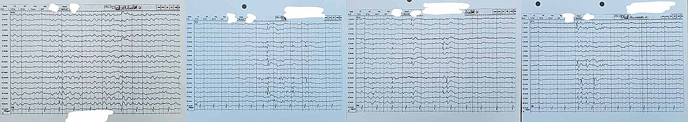 A-48-72-hour-EEG-reading-from-hour-12,-approximately-30-minute-window