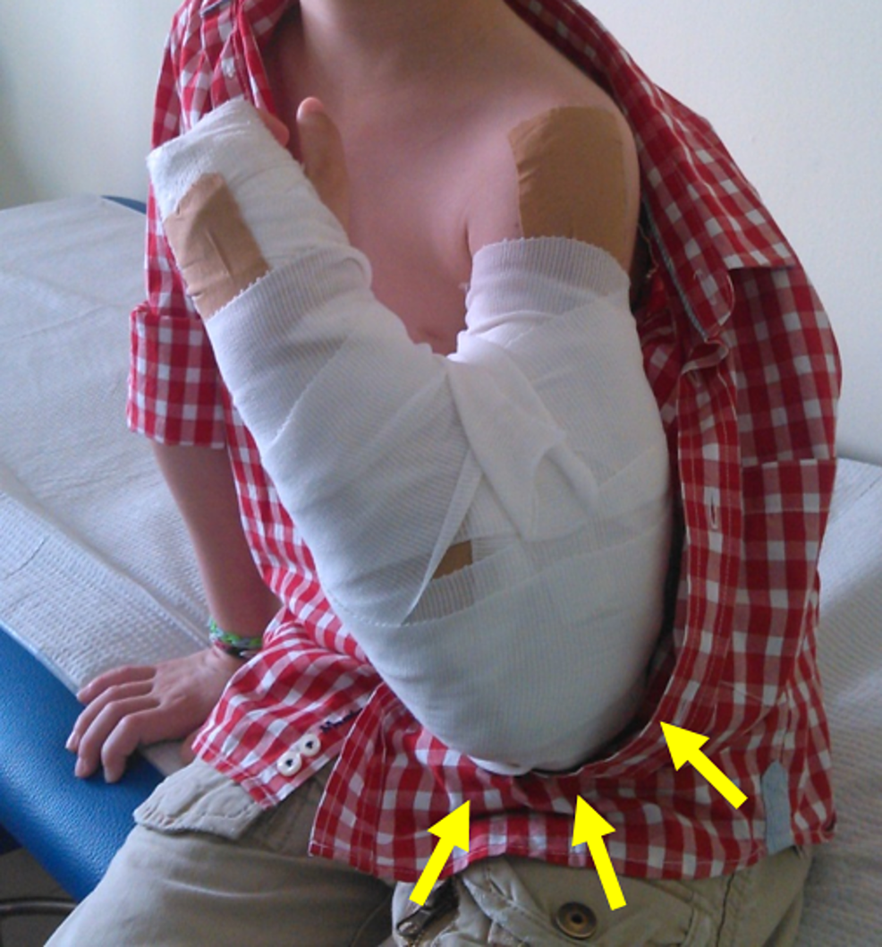 Patient-in-Figure-1:-Fracture-reduction-is-maintained-in-a-long-arm-cast-with-the-elbow-flexed-(Blount-method)