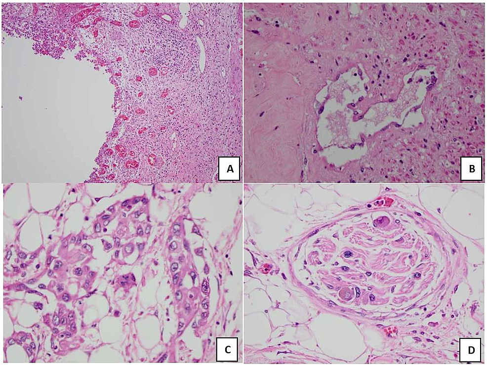 (A)-Prostatic-urethra-with-necrotic-tissue-and-an-ulcerated-epithelium.-(B)-Prostatic-stroma-with-fibrosis-and-no-adenocarcinoma.-(C)-Keratinized-SCC-within-posterior-prostatic-capsule.-(D)-Keratinized-SCC-within-prostatic-neurovascular-features.
