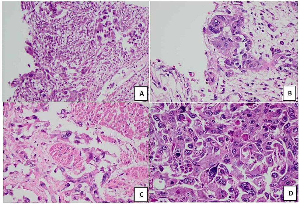 (A)-SCC-invasion-of-bladder-trigonal-epithelium.-(B)-SCC-invasion-of-left-ureter-epithelium.-(C)-SCC-invasion-of-rectal-smooth-muscle.-(D)-Liver's-hepatic-lobules-with-SCC-invasion.