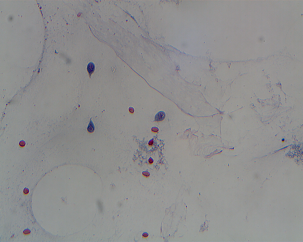 Cureus | Giardia-filled Pancreatic Mass in a Patient With ...