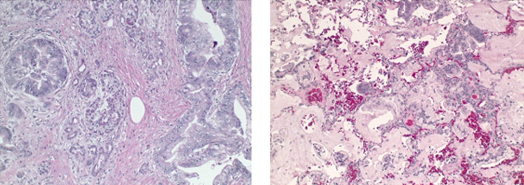 Cureus   A Long-Term Survivor of Metastatic Pancreatic
