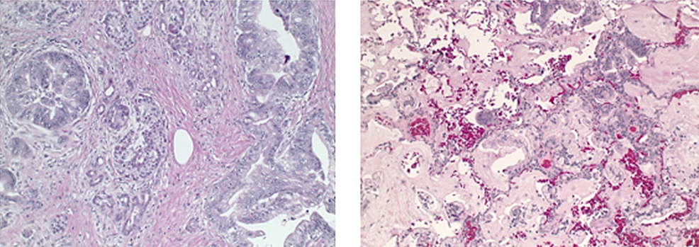 Histological-appearance-of-the-primary-tumor-and-metastatic-focus