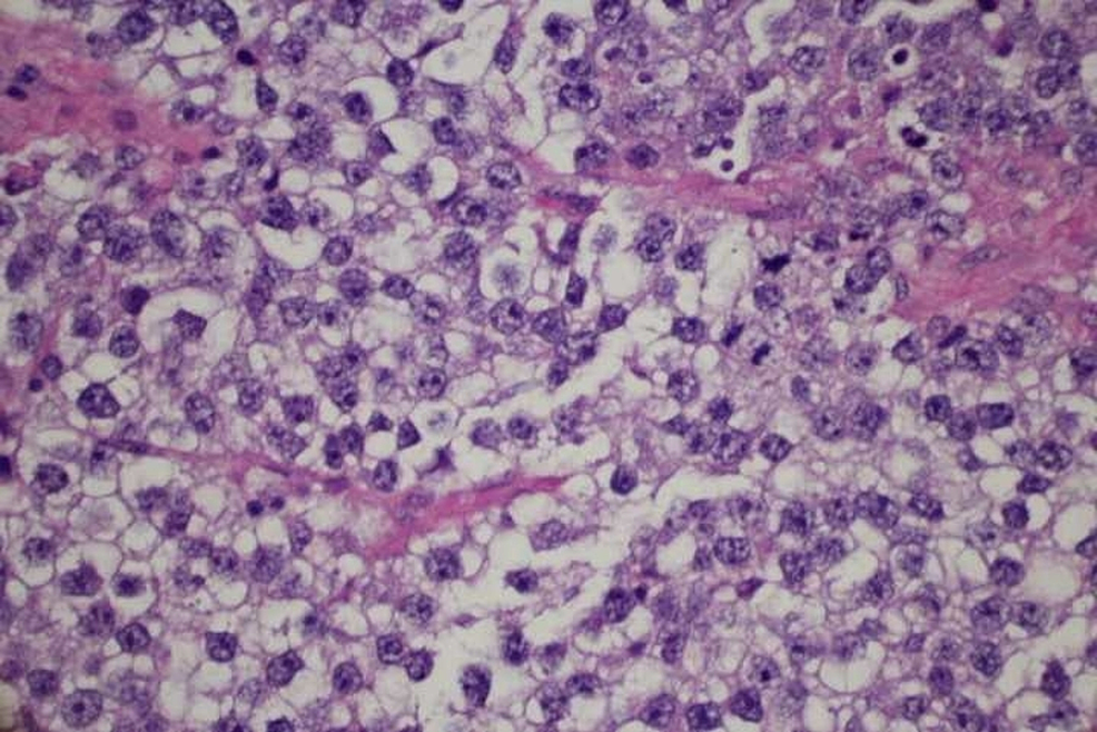 High-power-field-view-of-dysgerminoma