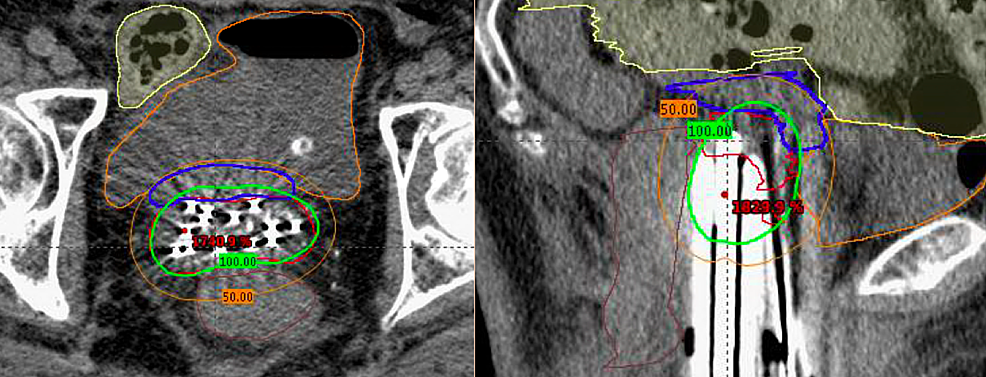 Computerized-tomography-images-of-final-approved-dosimetric-plan