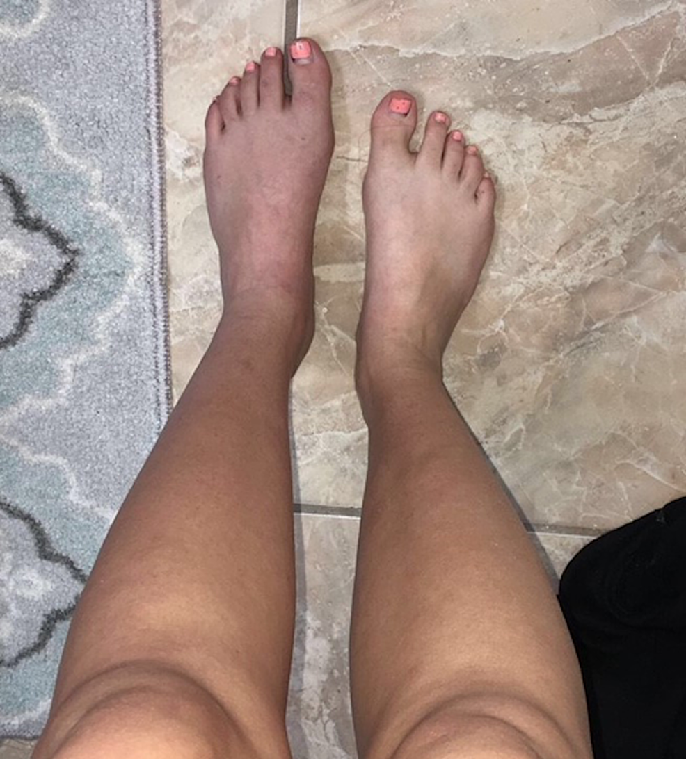 Picture-taken-at-home-by-patient-demonstrating-cyanosis-of-the-left-lower-extremity,-most-noticeable-on-the-dorsum-of-the-foot.--