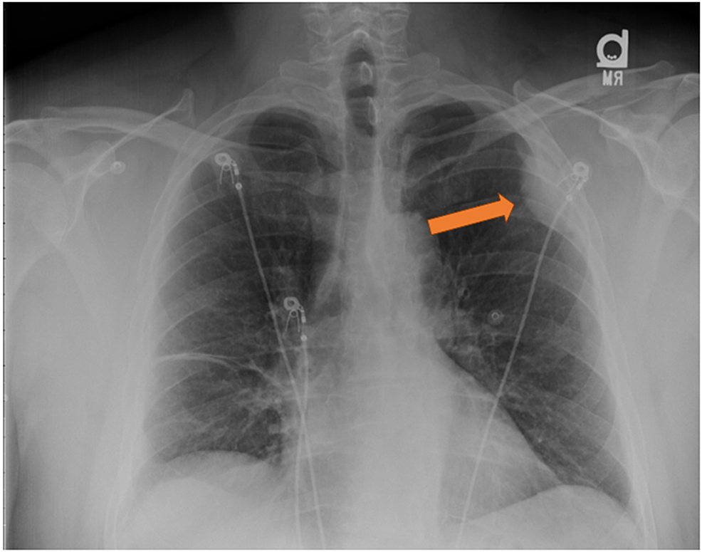 Chest-X-ray,-posteroanterior-view