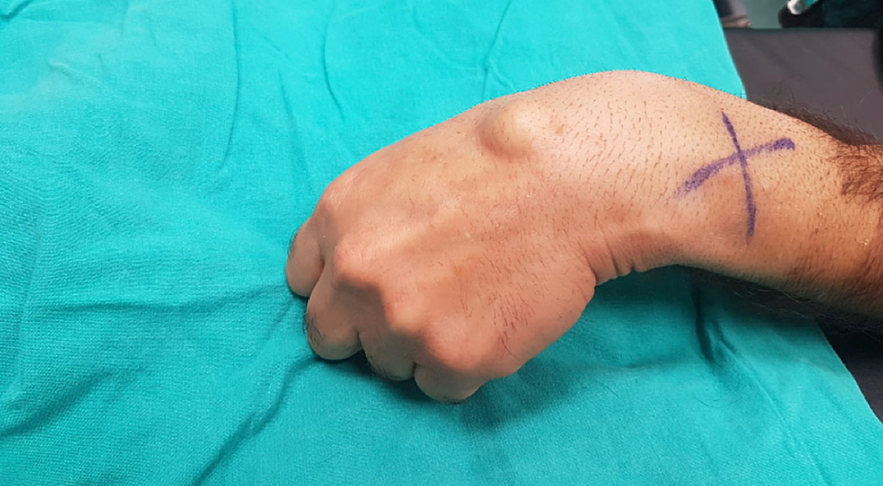 Clinical-image-of-dorsal-wrist-ganglion-cysts