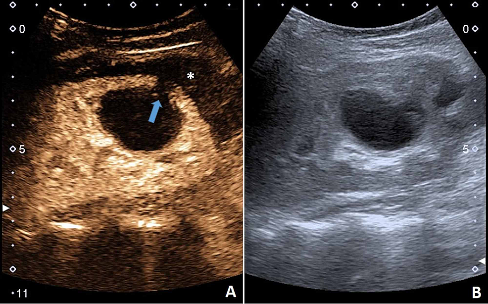 CEUS-(A)-demonstrating-the-larger-cyst-and-its-communication-(arrow)-with-the-subcapsular-fluid-collection-(asterisk).-(B)-B-mode-US.