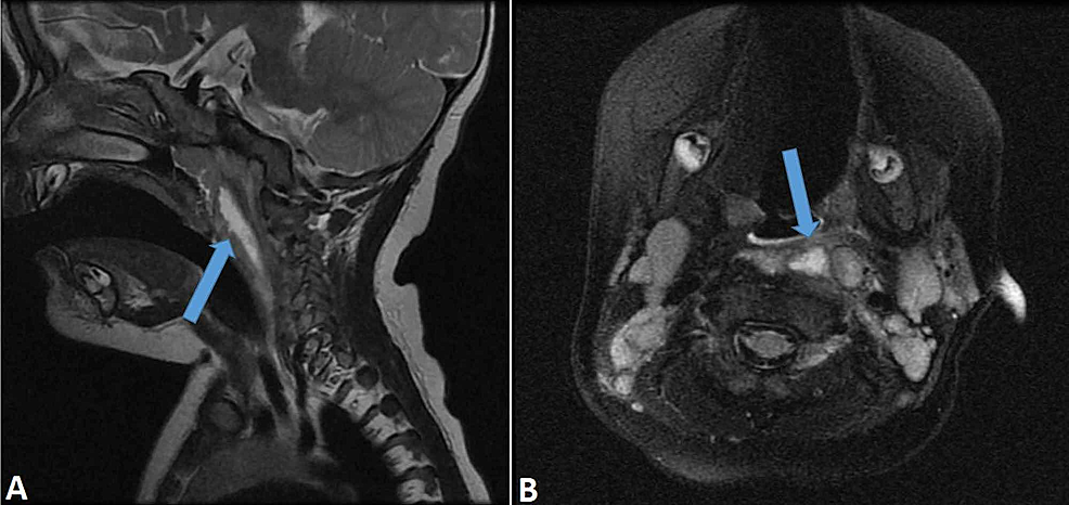 MRI-of-the-neck-confirming-the-presence-of-an-abscess-(arrow).-(A)-Sagittal-view.-(B)-Axial-view.