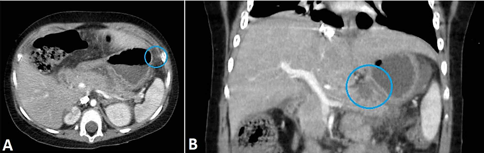 A-CT-examination-suggestive-of-necrotizing-pancreatitis.-(A)-Axial-view.-(B)-Coronal-view.