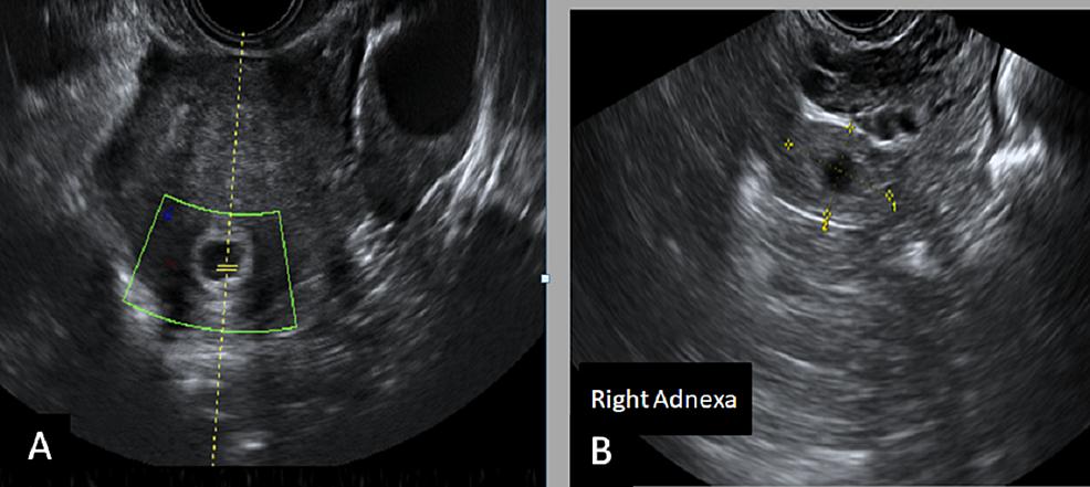 Transvaginal-ultrasound