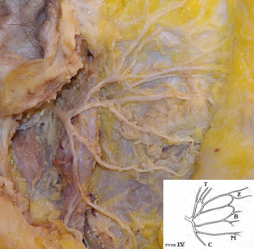 Bifurcation-of-a-single-facial-nerve-trunk;-type-IV-branching-pattern-based-on-Davis-classification