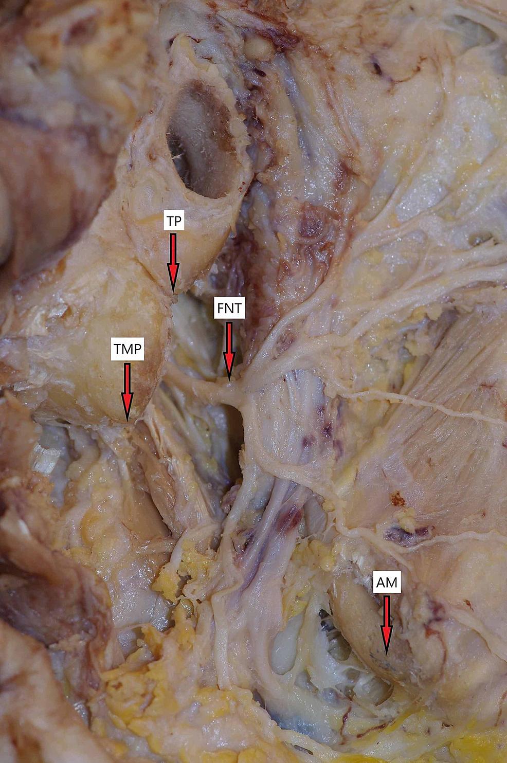 Facial-nerve-and-anatomical-landmarks