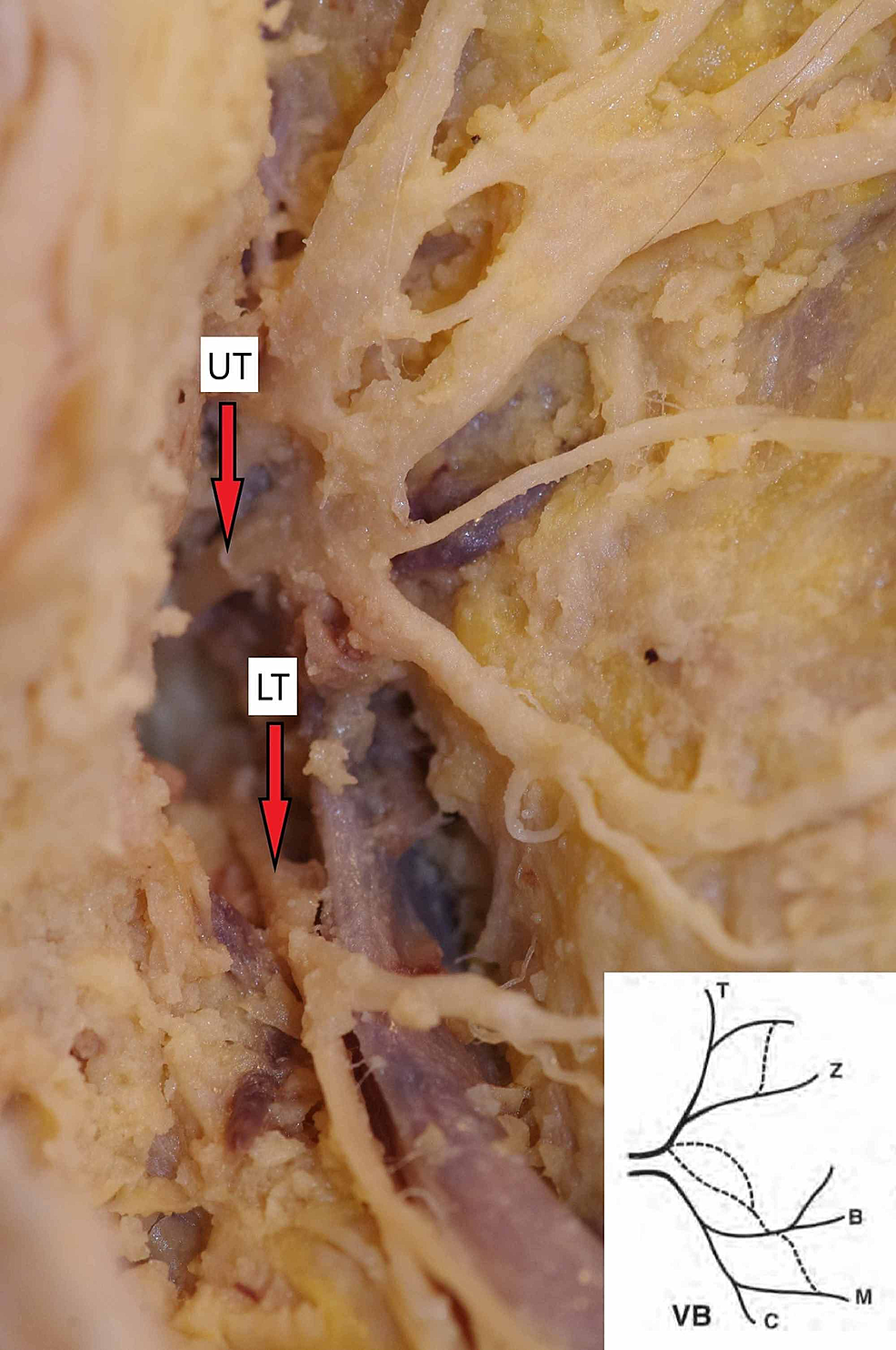 Two-separate-trunks-of-the-facial-nerve-emerging-from-the-skull-base