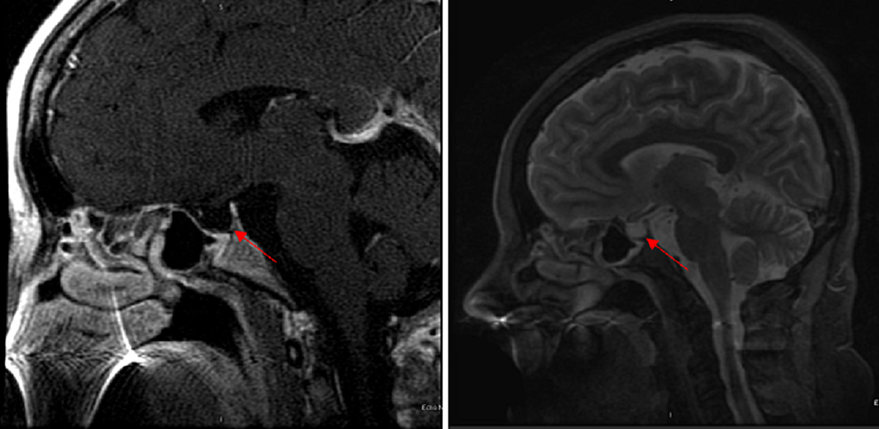 -Magnetic-resonance-imaging-(MRI)-of-the-brain-showing-an-empty-sella