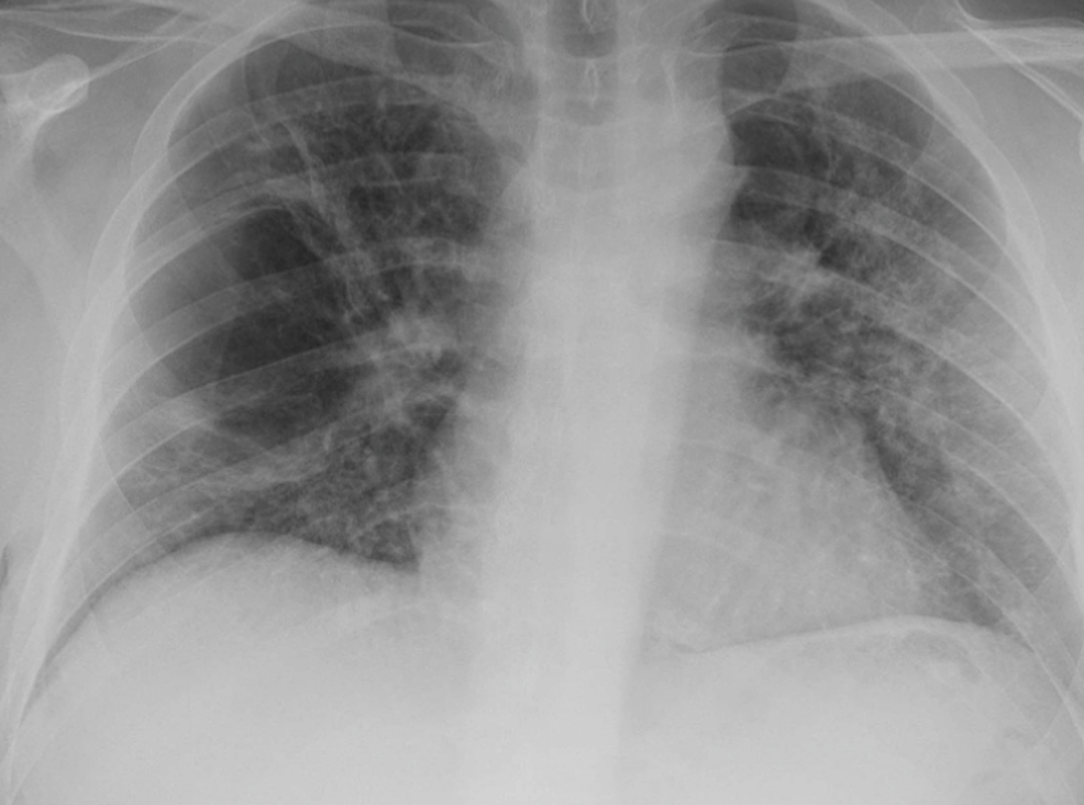 Chest-X-ray-showing-fully-re-expanded-lungs-after-chest-tube-removal-on-right-side.