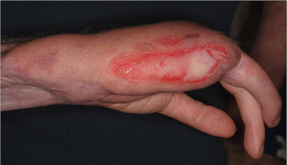 Deep-partial-thickness-contact-burn-to-the-ulnar-border-of-the-patient's-reconstructed-hand.