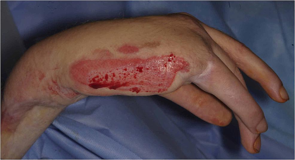Post-debridement-of-the-burn-to-viable-dermis.