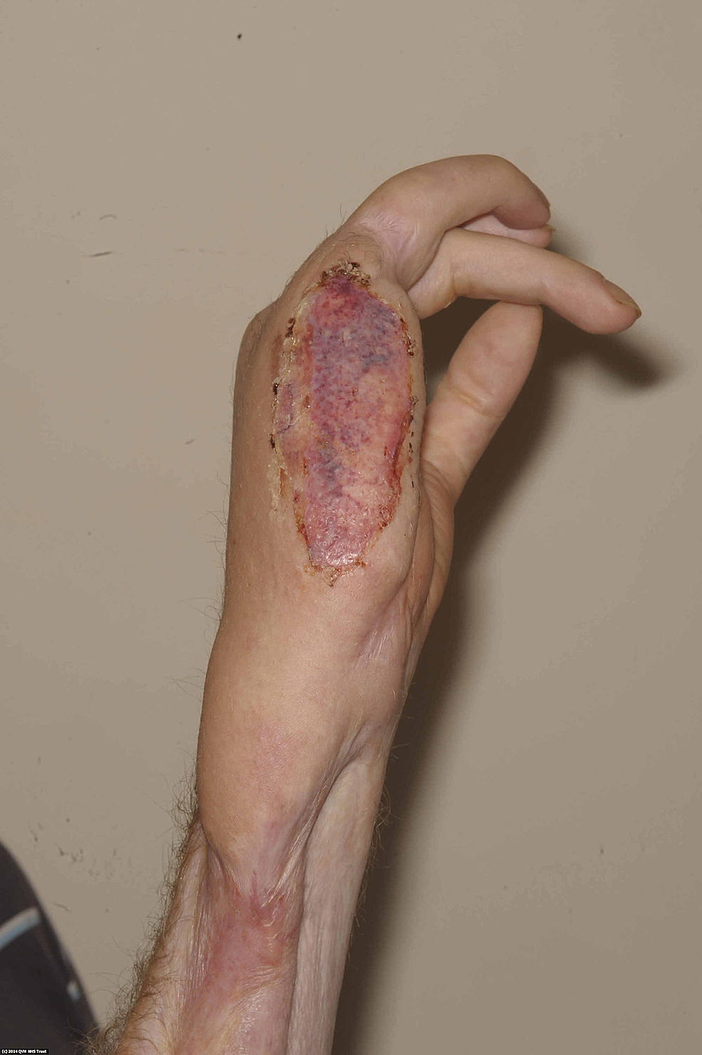 Ten-days-post-skin-grafting,-the-wound-had-almost-fully-healed.