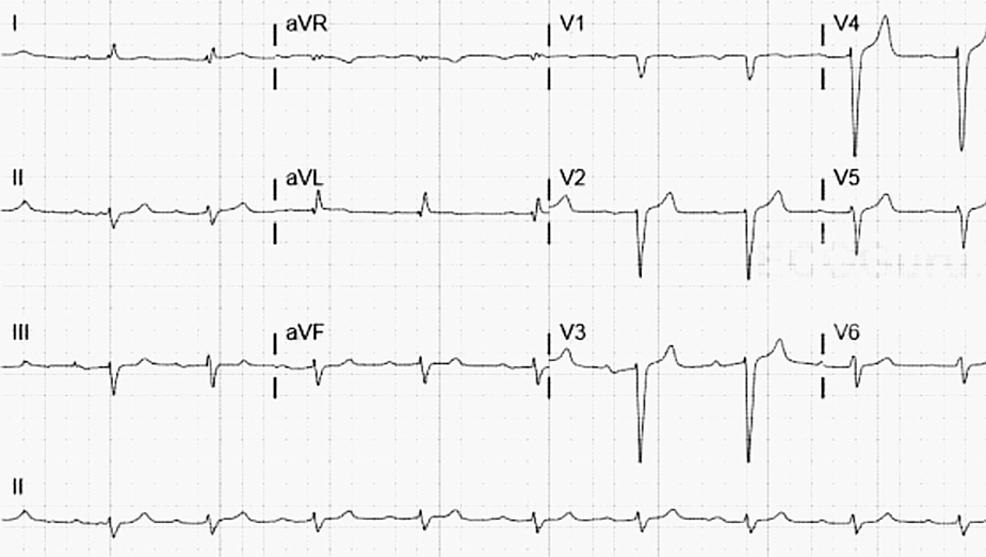 EKG-on-admission