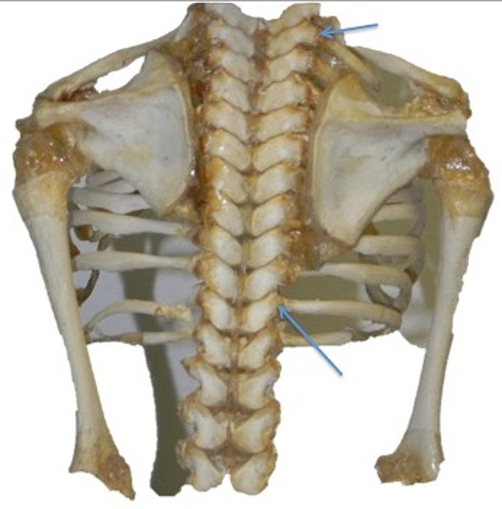 cureus ligaments of the costovertebral joints including