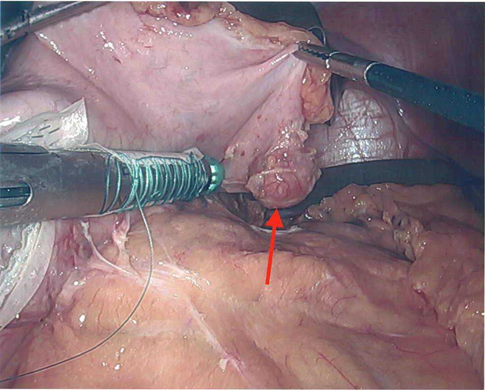 The-gastric-diverticulum-after-vessels-were-divided-and-sealed-along-the-greater-curvature-of-the-stomach.-