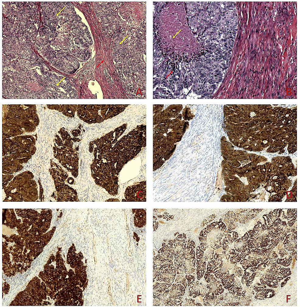 A.-On-medium-power-examination-the-tumor-(yellow-arrows)-infiltrates-the-leiomyoma-(red-arrow).-B.-Some-tumor-nests-(red-arrows)-display-central-necrosis-(yellow-arrows).-Immunohistochemical-study-was-positive-for-AE1/AE3-(C),-cytokeratin-8/18-(D),-and-cytokeratin-7-(E).-Ki67-stained-more-than-90%-of-tumor-nuclei-(F).