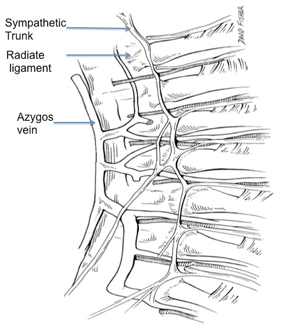 Schematic-drawing-of-the-internal-aspect-of-the-posterior-thorax-noting-the-radiate-ligament-attaching-the-head-of-the-rib-to-the-vertebral-body.-Note-the-relationship-between-this-ligament-and-the-overlying-sympathetic-trunk.-