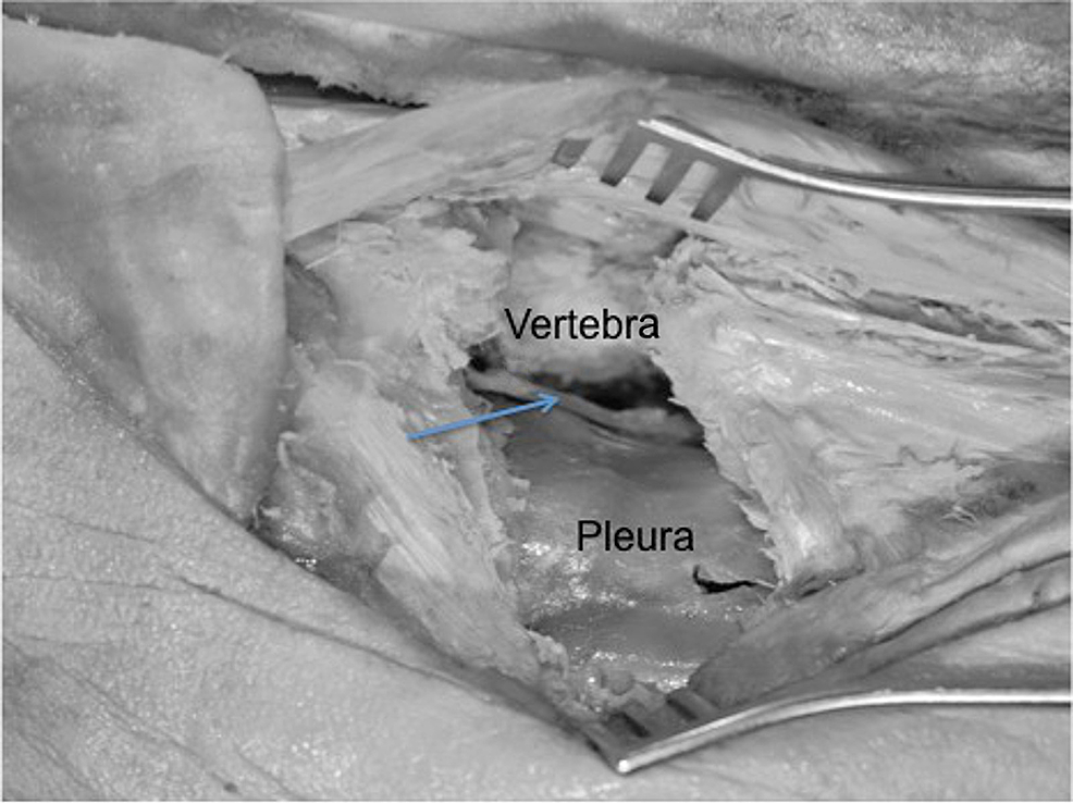 Left-posterior-costotransversectomy-procedure-where-the-proximal-rib-and-transverse-process-and-ligaments-have-been-removed-to-access-the-anterolateral-vertebral-body-(vertebra)-and-posterior-thorax.-Note-the-intact-pleura-and-exposed-sympathetic-trunk-(arrow).