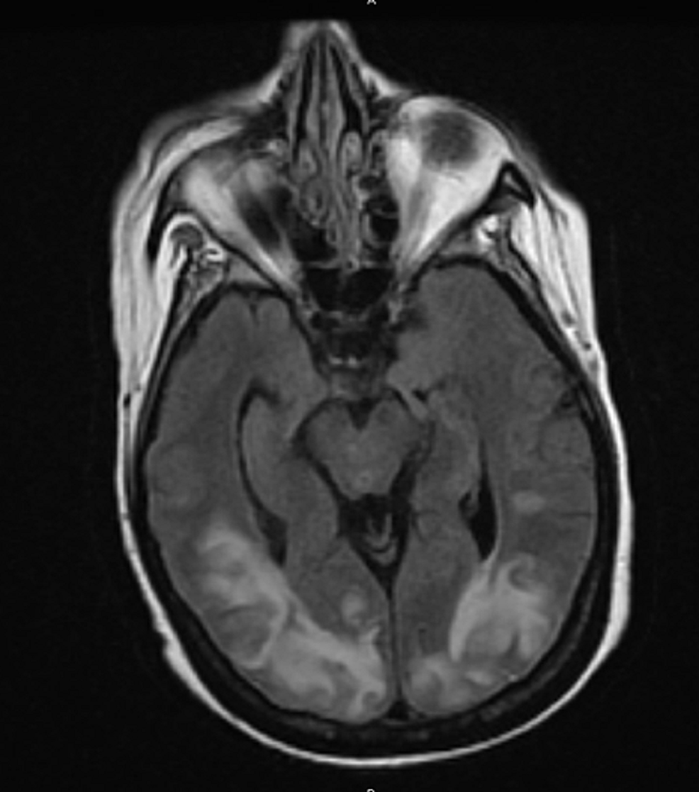 MRI-brain-showed-T2/FLAIR-signal-hyperintensity-over-the-bilateral-posterior-head-regions,-consistent-with-PRES