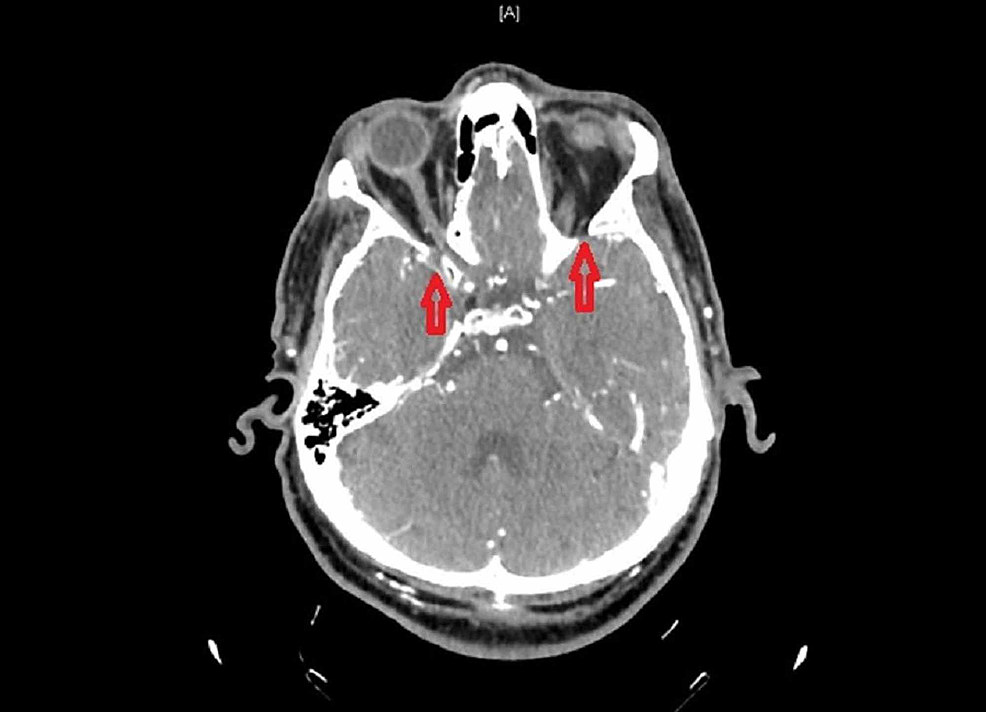 Neck-and-head-CT-angiography-showed-bilateral-ICA-occlusion